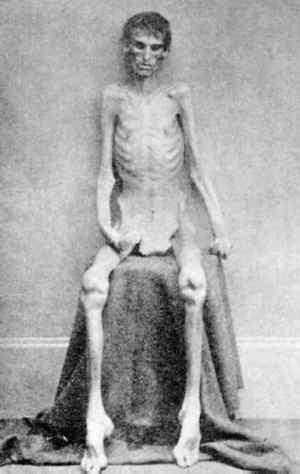 Disease and malnutrition killed many Civil War prisoners.
